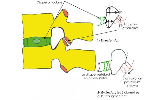 Ks ouverture ou fermeture du foramen intervert 233 bral