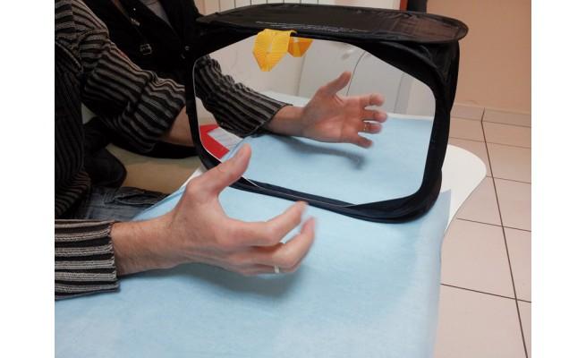Ks r ducation du sdrc de type i for Syndrome du miroir